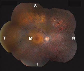 Image of a retina affected with MAK-associated retinitis pigmentosa. Note the more severe degeneration in nasal (N) and inferior (I) regions, compared to macular, superior or temporal retina (M, S, T, respectively).