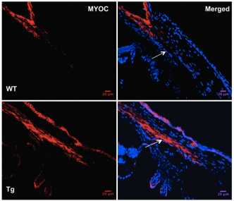 Transgene (Y437H MYOC) and WT MYOC expression were examined in 6-month-old WT and Tg-MYOC-Y437H littermates.  Immunostaining revealed that MYOC was localized to TM and is increased in Tg-MYOC-Y437H mice (bottom panels) compared with WT littermates (top panels). The trabecular meshwork is shown by the arrow.