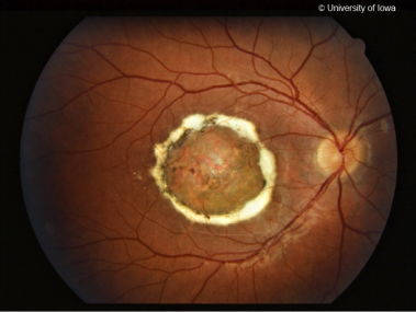Color fundus photo from a patient with North Carolina Macular Dystrophy