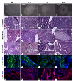 Feeder free derivation of iPSC lines from human dermal fibroblasts isolated from patients with retinal degenerative disease.